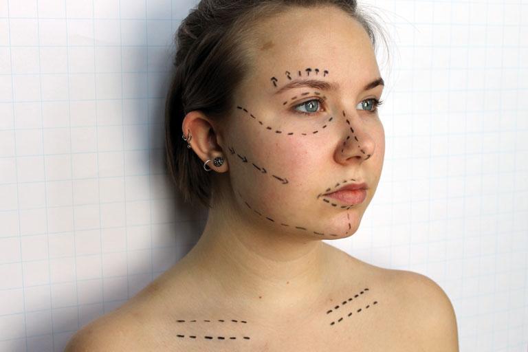 ausstellungs-projekt anders schoen - portraitaufnahme einer jungen frau mit angedeuteten linien für die schoenheitchirurgie, foto: paedagogisches institut